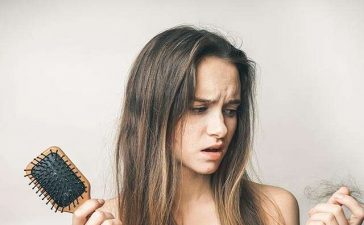 Stop Hair Loss From Dandruff
